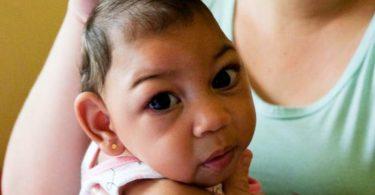 Zika microcefalia